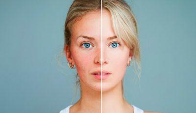 Îngrijește-ți corect tenul afectat de cuperoză și roșeața inestetică!