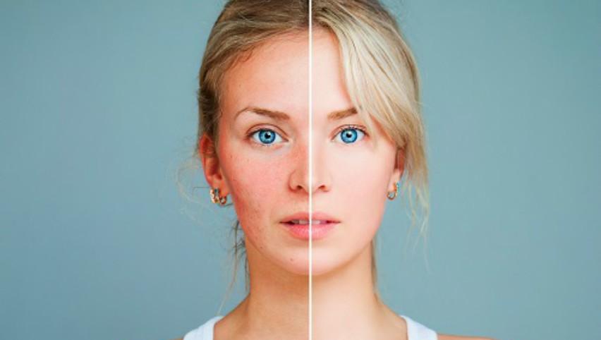 Foto: Îngrijește-ți corect tenul afectat de cuperoză și roșeața inestetică!