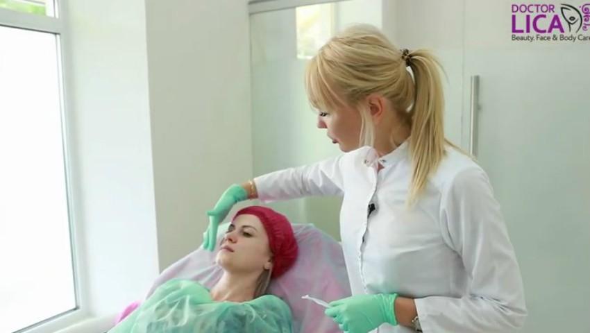 Foto: Injectarea cu ajutorul canulei – o nouă tehnică de augmentare a buzelor. Video
