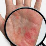 Foto: Tot mai mulți oameni suferă de psoriazis. Specialiștii explică care ar putea fi cauzele