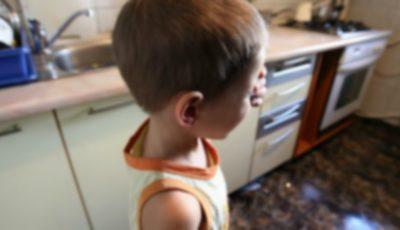 Pedeapsa îngrozitoare a unui tată din Orhei. Le-a provocat copiilor arsuri pe mâini