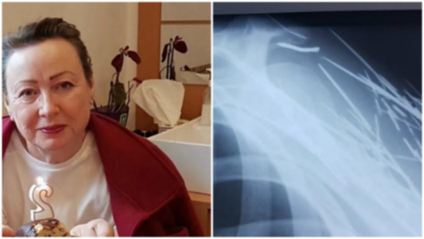 Foto: Un medic a făcut publice imagini cu radiografiile unui pacient. E șocant ce s-a descoperit în corpul acestuia!