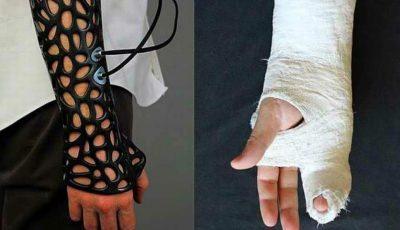 Adio ghipsul tradițional. Viitorul medicinei este ghipsul 3D care este ușor, permite pielii să respire și grăbește vindecarea