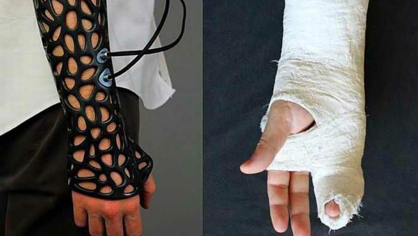 Foto: Adio ghipsul tradițional. Viitorul medicinei este ghipsul 3D care este ușor, permite pielii să respire și grăbește vindecarea