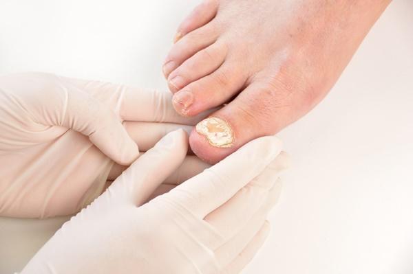 Foto: Medic dermatolog: Infecții micotice la nivelul piciorului – cauze și metode de prevenție