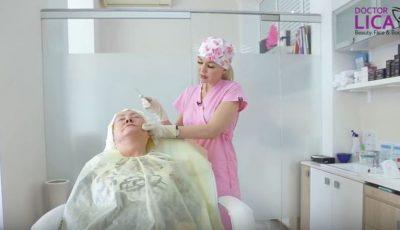 Inovația în materie de lifting facial sunt tratamentele de întinerire cu fire bioresorbabile de ultimă generație!