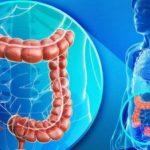 Foto: Cancerul colorectal ereditar. Testarea genetică de calitate înaltă de la CENTOGENE (Germany)