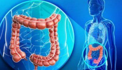 Cancerul colorectal ereditar. Testarea genetică de calitate înaltă de la CENTOGENE (Germany)