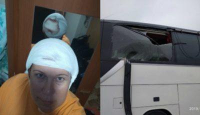 O femeie a fost rănită de coarnele unui troleibuz din Chișinău