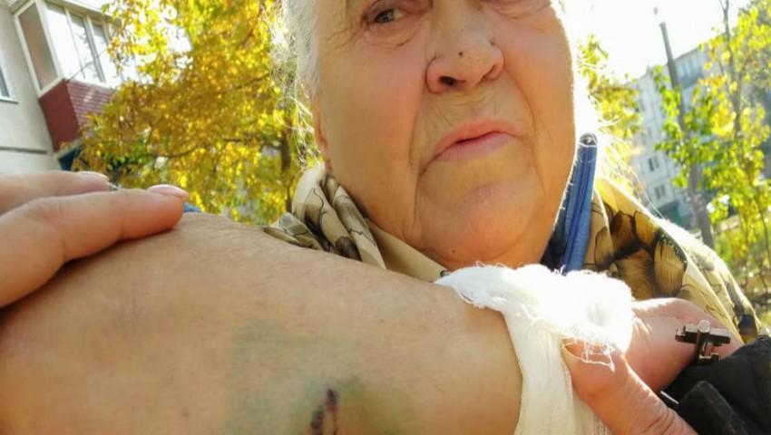 Foto: O bătrânică din Bălți, doborâtă la pâmânt și mușcată de trei câini vagabonzi, pe stradă