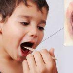 Foto: Alarmant! Cazuri de difterie, depistate în Ucraina