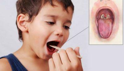 Alarmant! Cazuri de difterie, depistate în Ucraina
