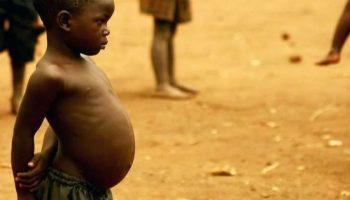 De ce micuții din Africa au burțile atât de mari?