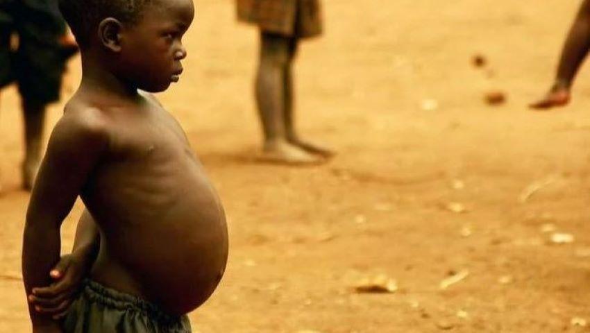 Foto: De ce micuții din Africa au burțile atât de mari?