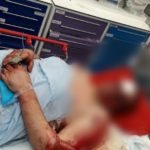 Foto: Un moldovean stabilit în Marea Britanie, rănit grav de către un hoț care a încercat să-i fure automobilul. Prietenii au inițiat o campanie de caritate!