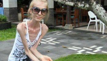 Lupta cu anorexia. Acum opt ani, această tânără cântărea doar 23 de kg. Cum arată astăzi?
