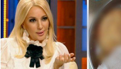 Lera Kudreavțeva a arătat imagini cu implantul crăpat, pe care medicii i l-au extras din sân