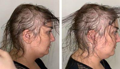 Un stilist a realizat o coafură șic din părul rar al unei femei