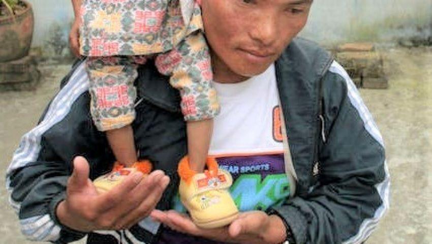 Foto: S-a stins din viață cel mai scund bărbat mobil din lume, la 28 de ani