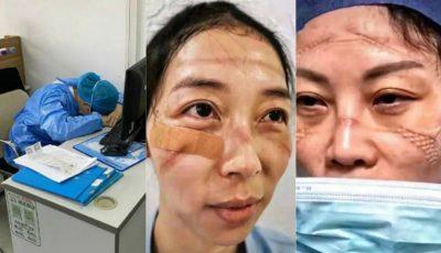Sacrificiul medicilor și asistentelor din China: răni pe față din cauza măștilor, nopți nedormite