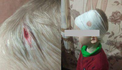 O mamă și-a luat copilul de la grădiniță cu o rană adâncă în regiunea capului