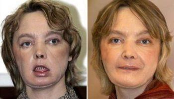 Povestea cutremurătoare a femeii care a beneficiat de primul transplant facial din lume, după ce câinele i-a smuls fața