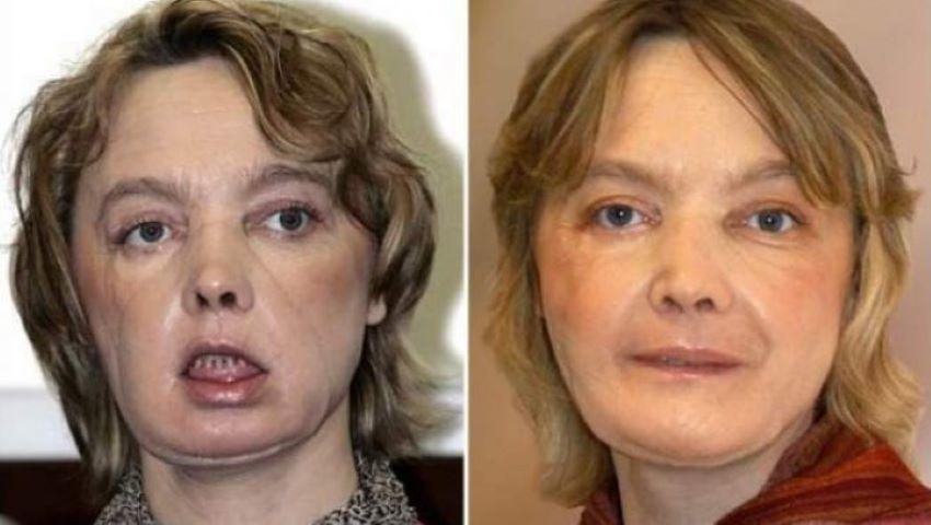 Foto: Povestea cutremurătoare a femeii care a beneficiat de primul transplant facial din lume, după ce câinele i-a smuls fața