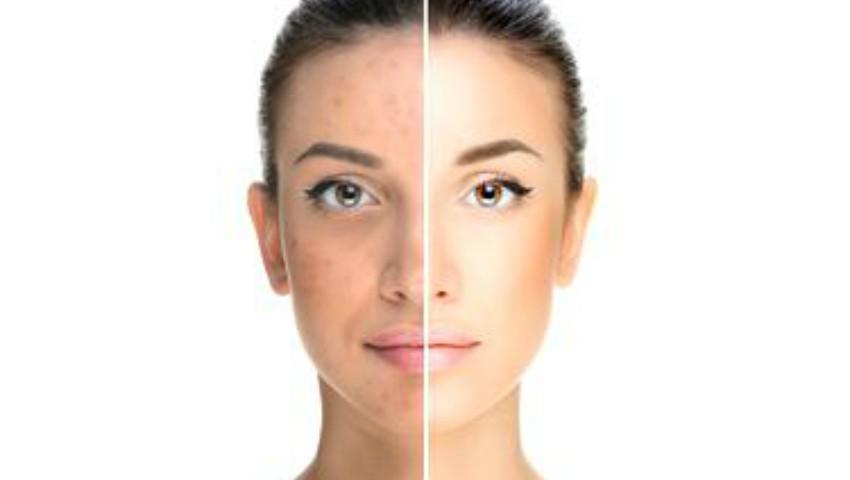 Foto: Ce probleme de sănătate poate trăda acneea