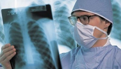 Cum arată plămânii unui pacient infectat cu noua tulpină de coronavirus