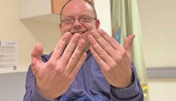 Medicii i-au transplantat unui pantofar degetul mare de la picior, la mână
