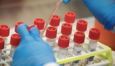SUA a aprobat primul test de diagnosticare rapidă pentru coronavirus, cu rezultat în 45 de minute