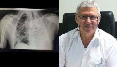 """Cristina Țărnă despre tatăl ei, chirurg toracal, demis din funcție: ,,Știa cum arată plămânii fiecărui pacient grav cu Covid-19 internat în spital"""""""
