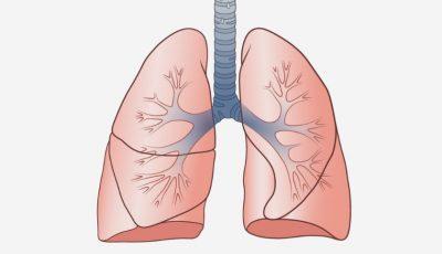 Cum sunt afectați plămânii în caz de Covid-19. Un medic american a realizat o animație 3D