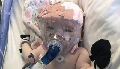 Foto. Fetiță de 6 luni cu Covid-19, conectată la un ventilator pulmonar