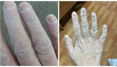 Foto. Mâinile unui cadru medical după 12 ore de muncă, sub trei rânduri de mănuși