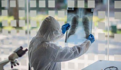 Coronavirus România. Avertismentul unui doctor, după decesul celui de-al treilea medic: a rămas fără plămâni
