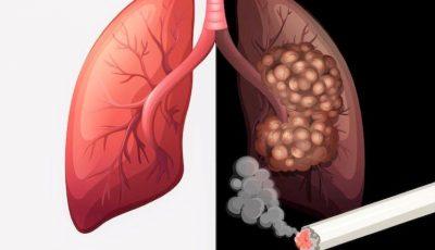 Fumatul crește riscul infectării cu noul coronavirus: Nu e târziu să te lași nici acum