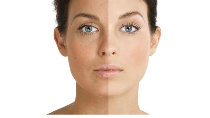 Cum poate fi prevenită apariția petelor pigmentare?