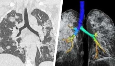 Mai multe studii arată că bolnavi de Covid-19 pot avea pe viață leziuni pulmonare