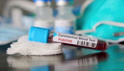 În Moldova, testarea pentru Covid-19 va fi acoperită de asigurarea medicală
