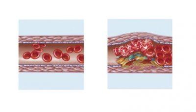 Virusul SARS-CoV-2 ar putea agrava starea de sănătate prin tromboză diseminată, arată studii recente