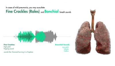 Video. Cum sună plămânii unui bolnav atacat de virusul Covid-19