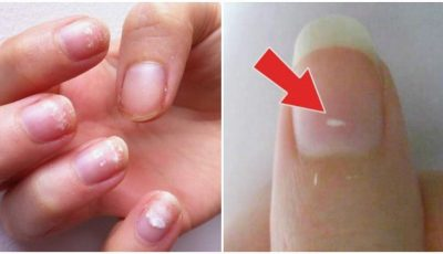 Ai pete mici și albe pe unghii? Nu lipsa de calciu este cauza, spune medicul