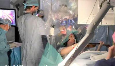 Video. O femeie a umplut măsline în timpul unei operații pe creier