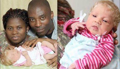 """Un cuplu de africani a adus pe lume un bebeluș """"alb ca zăpada"""""""
