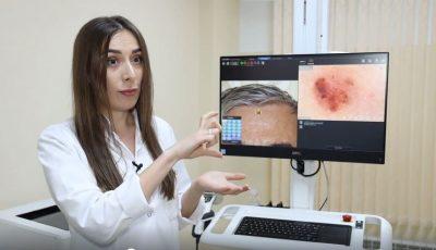Dermatoscopia – metoda inovatoare de diagnosticare a afecțiunilor pielii, unghiilor și părului