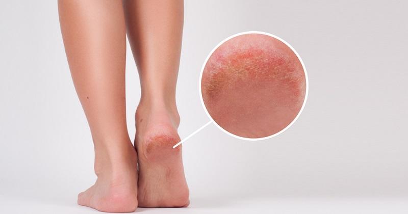 Călcâie uscate și crăpate: cum să combați problema și să oferi o îngrijire adecvată picioarelor tale