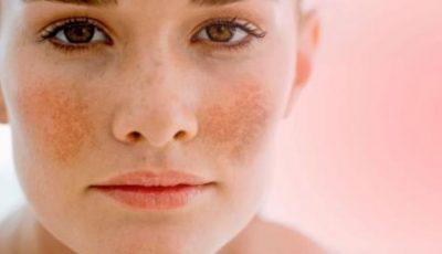 Petele pigmentare: care sunt cauzele și cum să scapi de acestea!