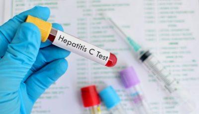 În Moldova este introdusă testarea screening la hepatitele virale B și C cu teste rapide de diagnostic