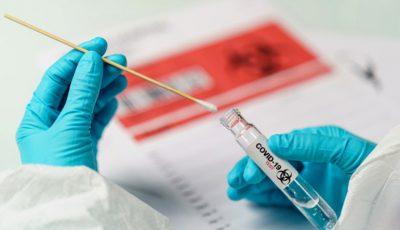 Comisia Europeană recomandă testarea largă pentru depistarea cazurilor de Covid-19